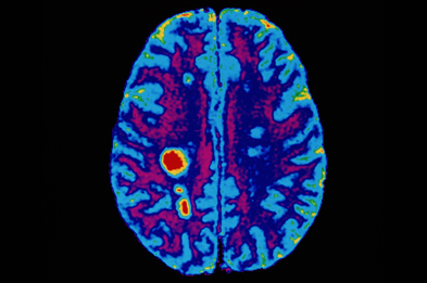 MRI studies showed that cladribine significantly reduced the number of brain lesions in patients with relapsing remitting MS. (Photograph: SPL)