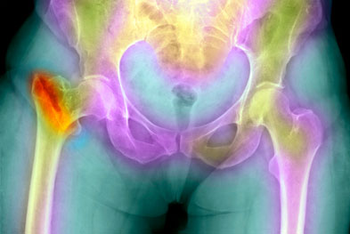 The reduction in bone density seen in osteoporosis increases the risk of a fracture occurring | SCIENCE PHOTO LIBRARY