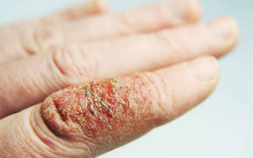 Treatment of infected eczema with emollients and topical corticosteroids should be continued whether antibiotics are offered or not. | GETTY IMAGES