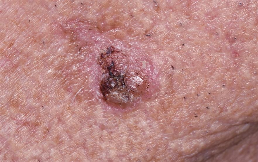 Cases of squamous cell carcinoma have been reported in studies of ingenol mebutate. | DR P. MARAZZI/SCIENCE PHOTO LIBRARY