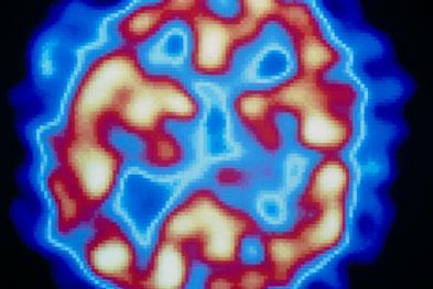 Antipsychotic medication primarily suppresses dopamine receptor activity in the brain. SCIENCE PHOTO LIBRARY
