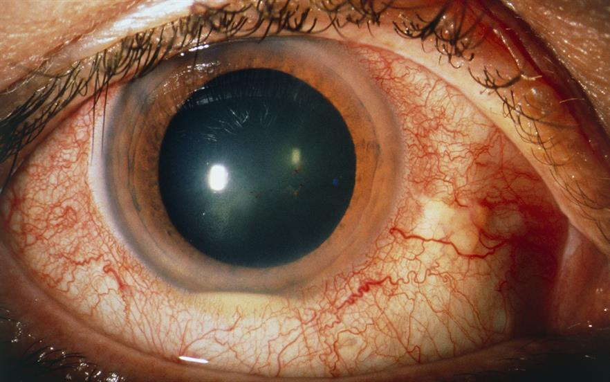 Behcet's disease is a rare autoimmune disorder that causes mouth and genital ulceration and inflammation of the eye (pictured) | SUE FORD/SCIENCE PHOTO LIBRARY