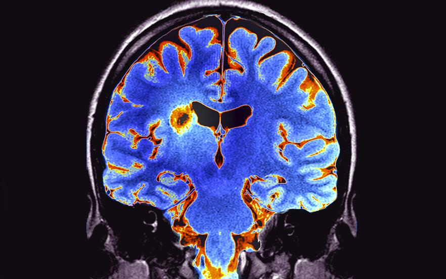 MS is a chronic, lifelong and disabling condition affecting the brain and spinal cord. It is estimated that around 116,000 people in England are affected, of whom about 40,000 have relapsing-remitting MS. | ZEPHYR/SCIENCE PHOTO LIBRARY