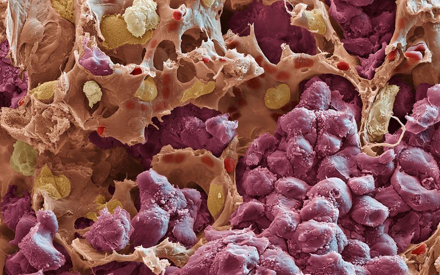 EGFR mutations are found in 10–15% of NSCLC patients in Europe and 30–40% of NSCLC patients in Asia. | SCIENCE PHOTO LIBRARY