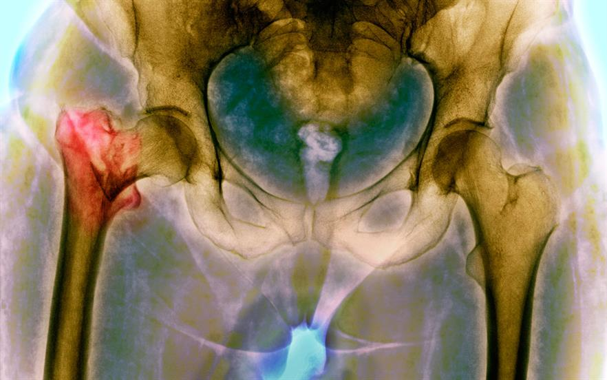 New NICE guidance means thousands more people could be offered drugs to prevent bone fractures because of osteoporosis. | SCIENCE PHOTO LIBRARY