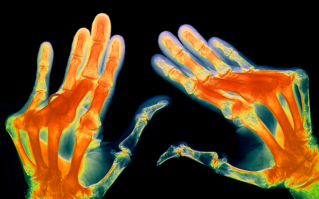 Kevzara (sarilumab) can be used to treat moderately to severely active rheumatoid arthritis when DMARDs have failed. | ZEPHYR/SCIENCE PHOTO LIBRARY