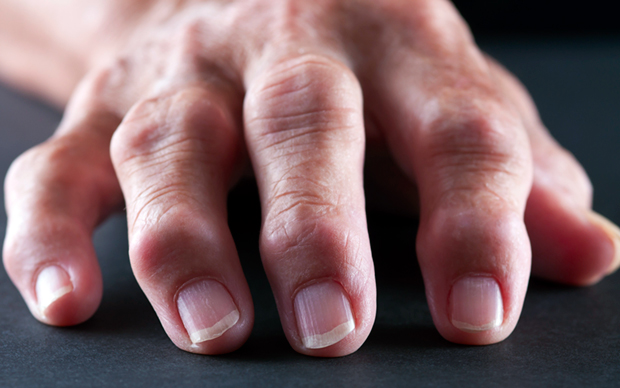 IL-6 levels correlate with disease activity and joint destruction in rheumatoid arthritis. | iSTOCK