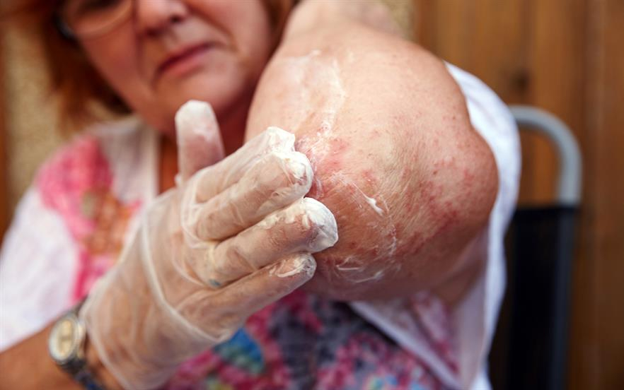 Topical steroid withdrawal reactions have been reported in some long-term users of topical corticosteroids after they stop use. | GETTY IMAGES