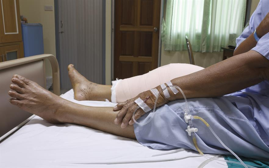 Currently, patients experiencing moderate-to-severe acute pain in hospital may use intravenous patient-controlled analgesia with morphine or hydromorphone.   iSTOCK