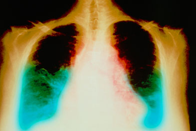 RAS-blocking agents are used to treat hypertension and congestive heart failure (pictured).   SCIENCE PHOTO LIBRARY