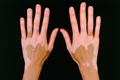 Vitiligo causes loss of pigment in affected areas of the skin (Photograph: Custom Medical Stock Photo/Science Photo Library)
