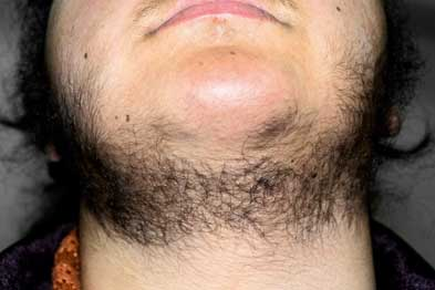Hirsutism is characterised by male-pattern hair growth (Photograph: Dr Harout Tanielian/SPL)