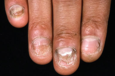 Onychomycosis: typical discoloration and distortion of the nails (Photograph: Dermatology dept, King's College Hospital)