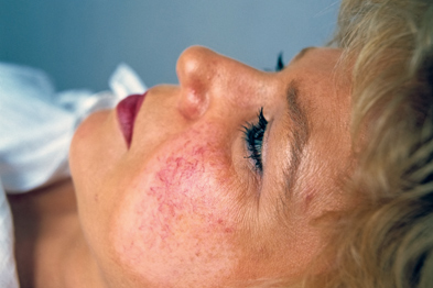 Facial telangiectasia can respond well to laser therapy (Photograph: Tony McConnell/Science Photo Library)