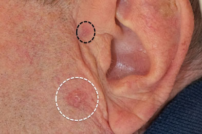 A classic BCC at a typical site on the preauricular skin, here highlighted in white. A less obvious BCC is highlighted in black (Photograph: Dr Neil Rajan)