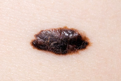 Melanoma: lesion thickness is the main determinant of fatality (Photograph: Dr P Marazzi/SPL)