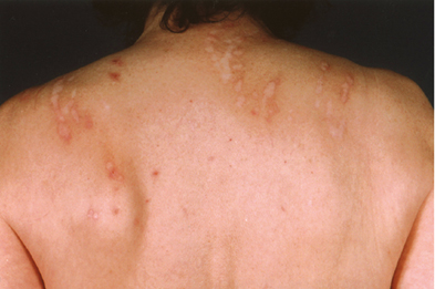 Patients with delusional infestation can cause severe secondary damage to their skin