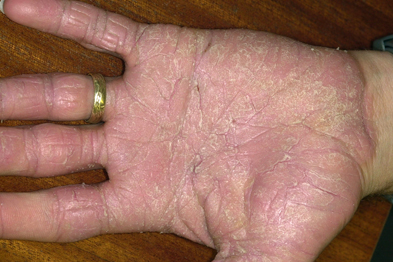 Contact dermatitis is responsible for significant lost work time