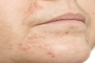 Perioral dermatitis: mildly itchy rash (Photograph: Southampton University Hospitals Trust)