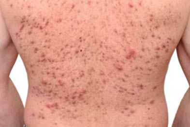 Acne: onset correlated with patient's use of oral testosterone (Photograph: Southampton University Hospitals Trust)