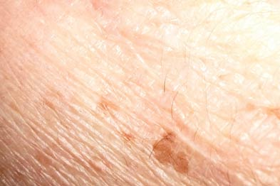 Solar lentigo: topical retinoids can be an effective treatment (Photograph: Dr Paul Charlson)