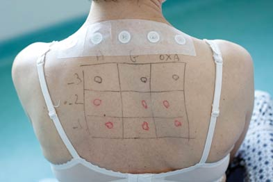 Patch tests can help to identify specific causes of skin allergy (Photograph: Astier/SPL)