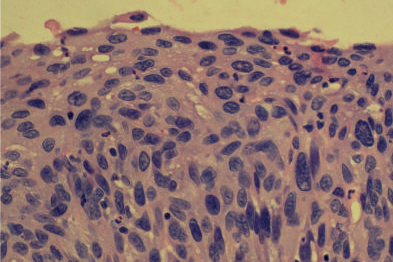 CIN3: HPV screening could be more effective than smear tests