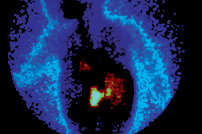 Coloured gamma scan of neuroblastomas (white and red)