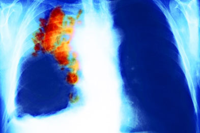 Coloured X-ray of the chest of a patient with SCLC (Photograph: PR M Brauner/SPL)