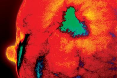 Coloured mamogram shwing breast malignancy (green)