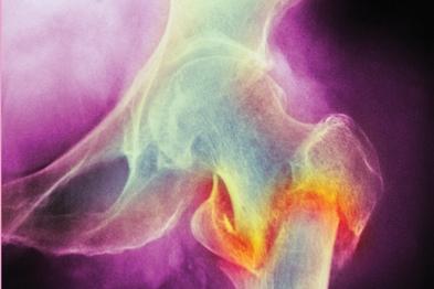Osteoporotic fracture of femur