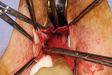 Surgical repair for vaginal wall prolapse