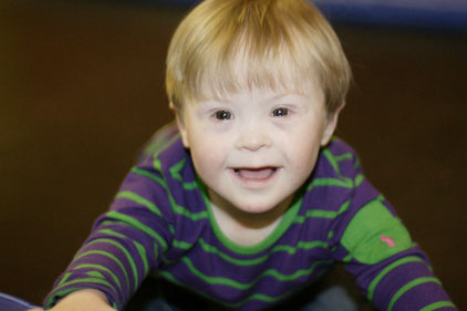 New research: Down's syndrome