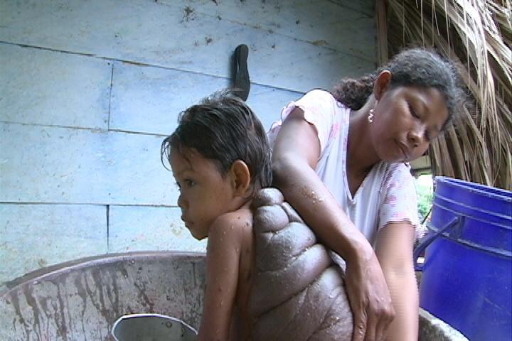 Documentary: 'A Bodyshock Special: Turtle Boy'
