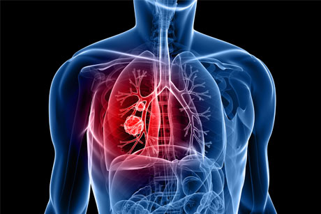 Public Health England: Cancer campaign relaunched (credit: Thinkstock)
