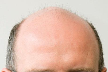 On the agenda: Baldness (Credit: Julian Dodd)
